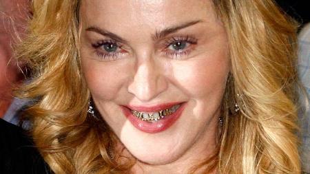 zaehne-madonna-posiert-mit-goldenen-grillz-ein-angesagter-zahnschmuck-